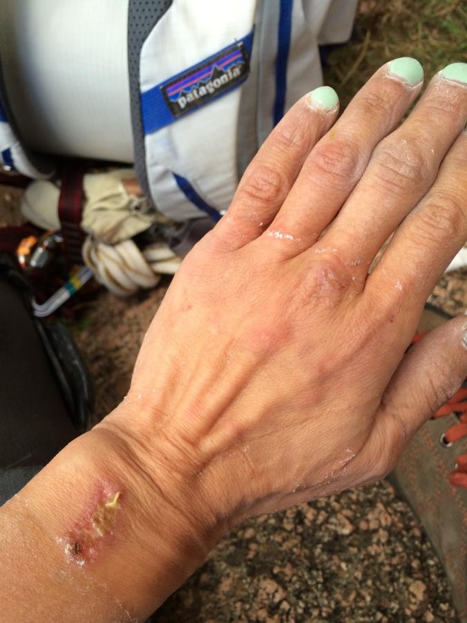 Trashed hand #1
