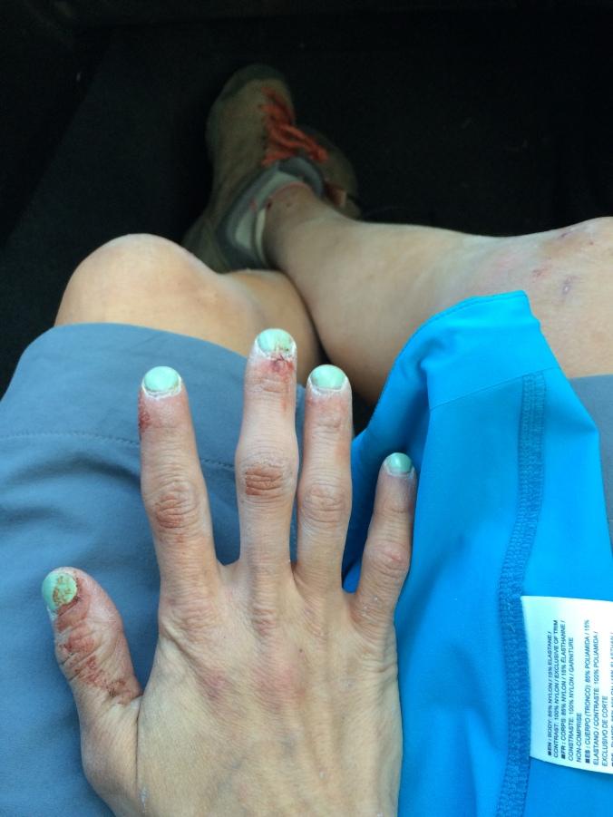 Trashed hand #2